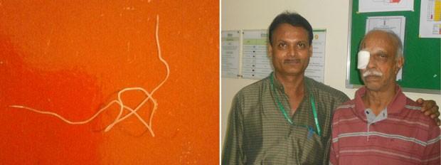 À esquerda, o verme; à direita, o médico e o paciente (Foto: AFP Photo/Fortis Hospital)