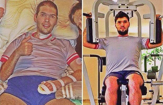 Thiago pouco tempo depois de sofrer um AVC hemorrágico e, mais recentemente, de volta à luta para emagrecer (Foto: Arquivo pessoal)