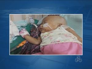 Samara estava internada há três meses no Hospiptal Infantil Cosme e Damião (Foto: Reprodução/TV Rondônia)