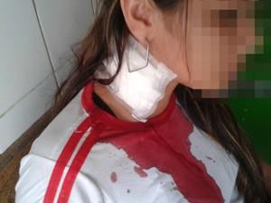garota agredida Feijó Acre  (Foto:  Arquivo pessoal)