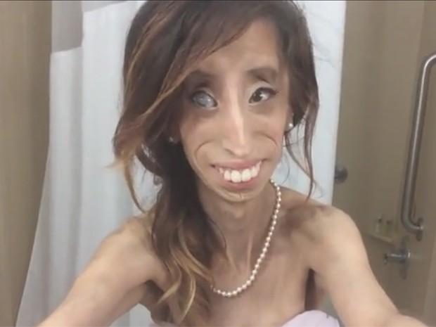 Lizzie Velazques comemora arrecadação de R$ 480 mil para filme 'anti-bullying' sobre sua história. Ela começou a dar palestras depois de ser chamada de 'mulher mais feia do mundo' (Foto: Divulgação)