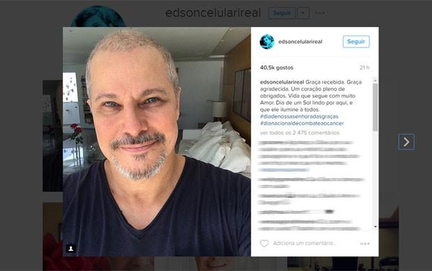 Edson Celulari comenta o fim do tratamento contra o câncer; 'graça recebida', escreveu ele no Instagram (Foto: Reprodução/Instagram/edsoncelularireal)
