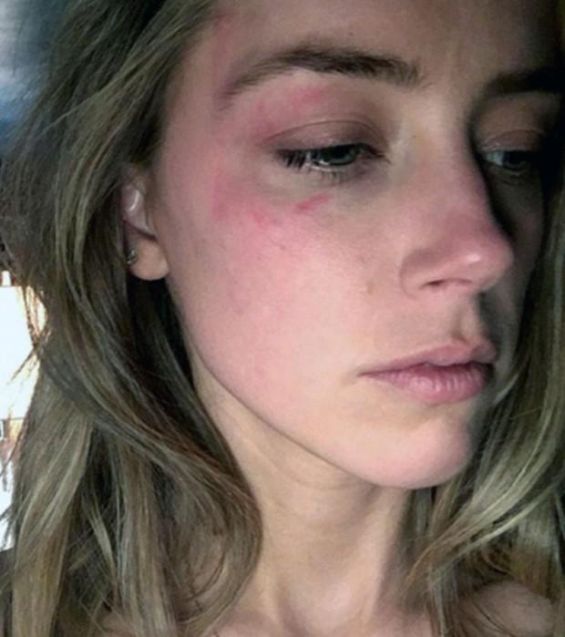 Amber Heard machucada (Foto: The Grosby Group)