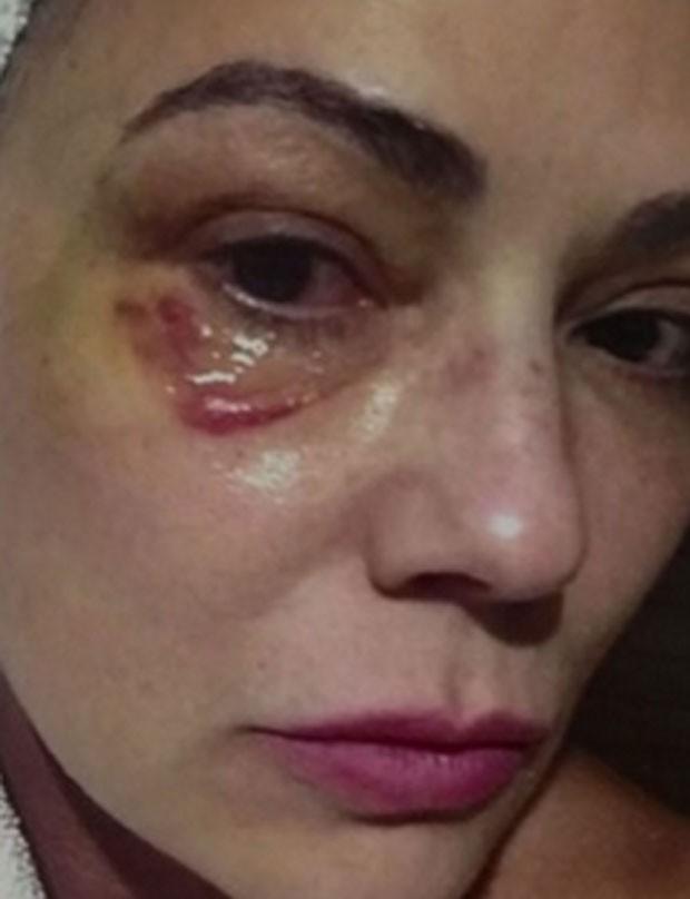 Luiza Brunet exibe agressão feita por ex-namorado  (Foto: Reprodução)