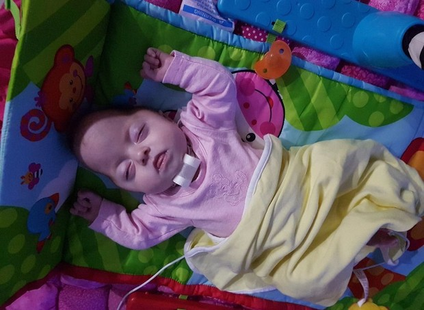 Apryl foi diagnosticada com a síndrome de Pfeiffer ainda na gravidez (Foto: Arquivo pessoal / gofundme)