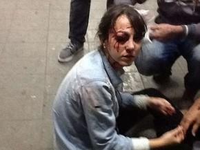 O jornal 'Folha de S.Paulo' diz que teve 7 repórteres atingidos no protesto. Entre eles, Giuliana Vallone e Fábio Braga levaram tiro de bala de borracha no rosto, de acordo com a publicação.  (Foto: Diego Zanchetta/Estadão Conteúdo)
