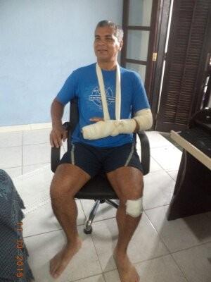 Ciclista ficou em casa por meses até se recuperar de ferimentos em Guarujá (Foto: Luis Claudio Campos / Arquivo Pessoal)