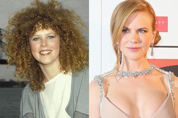 Olhando para as fotos, não parecem duas pessoas diferentes? Acredite se quiser, mas é a atriz Nicole Kidman quem se encontra nas duas imagens. Os boatos são de que a diva passou por procedimentos no rosto e nos seios. (Foto: Getty Images)