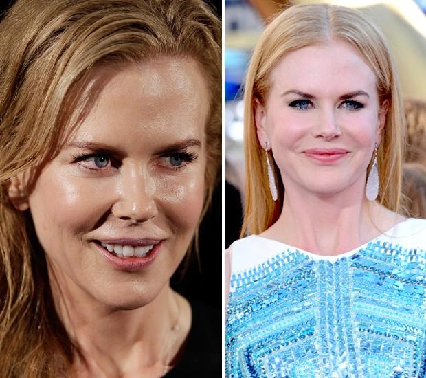 Nicole Kidman chama atenção por aparência (extra) jovial em campanha