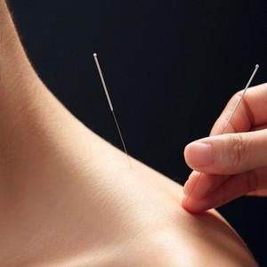ALÍVIO A modelo simula um tratamento com acupuntura. A técnica é eficaz para tratar dores crônicas  (Foto: Yi Lu/Viewstock/Corbis)