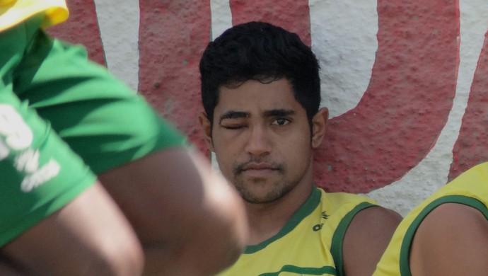 Diego Aragão e Aurélio, jogadores do Coruripe (Foto: Leonardo Freire/GloboEsporte.com)