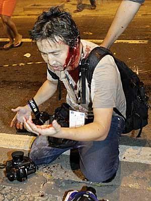 Yasuyoshi Chiba, logo após ser atingido na cabeça. (Foto: Uanderson Fernandes / AFP Photo)