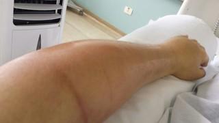 Ken Humano com infecção no braço (Foto: Arquivo pessoal)