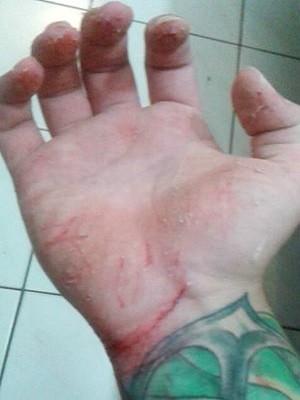 Jovem sofreu vários ferimentos tentando salvar adolescente de se afogar (Foto: Reprodução / Facebook)