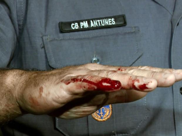 Policial mostra dedo ferido durante abordagem em Campinas (Foto: Luciano Machado/EPTV)
