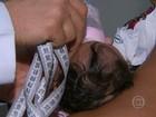 Geneticistas avaliam malformações em bebês com microcefalia no Recife