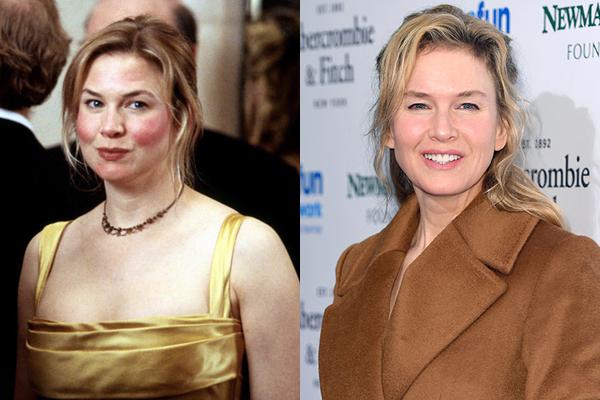Renée Zellweger em 2001 e atualmente (Foto: Divulgação)