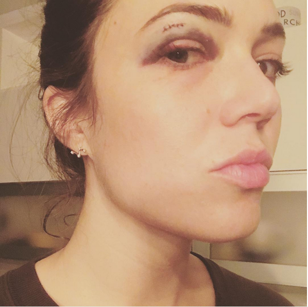 Os ferimentos no rosto da atriz Mandy Moore (Foto: Instagram)