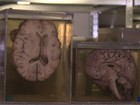 Bélgica tem maior coleção de cérebros do mundo para pesquisa de doenças