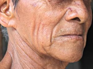 Vítima ficou com rosto machucado  (Foto: Suelen Gonçalves/G1 AM)