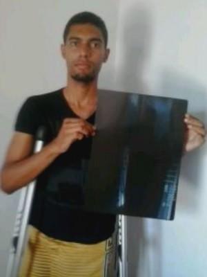 Jovem afirma ter sofrido erro médico em cirurgia na perna, em Goiânia, Goiás (Foto: Arquivo pessoal)