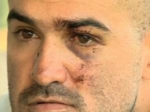 Rorion Moraes perdeu seis dentes (Foto: Reprodução/ TV Globo)