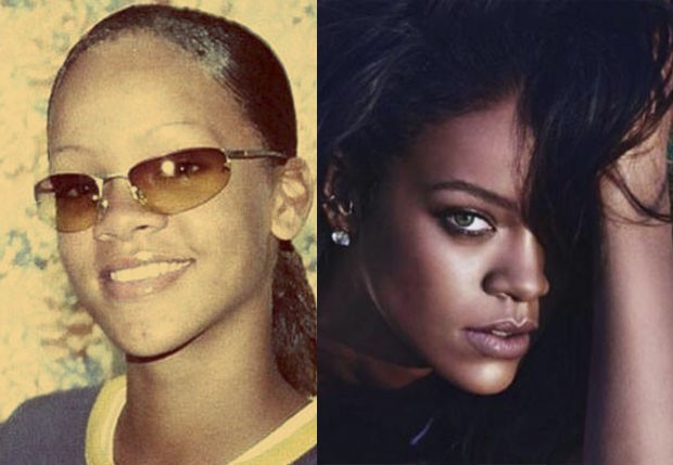 Rihanna antes e depois (Foto: Reprodução/Instagram)