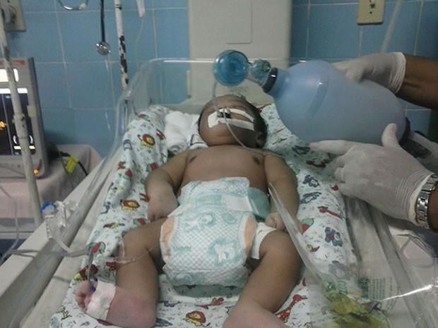 Enfermeiras bombeiam manualmente orixigênio para criança, por falta de aparelhos adequados (Foto: Márcio Garcia)