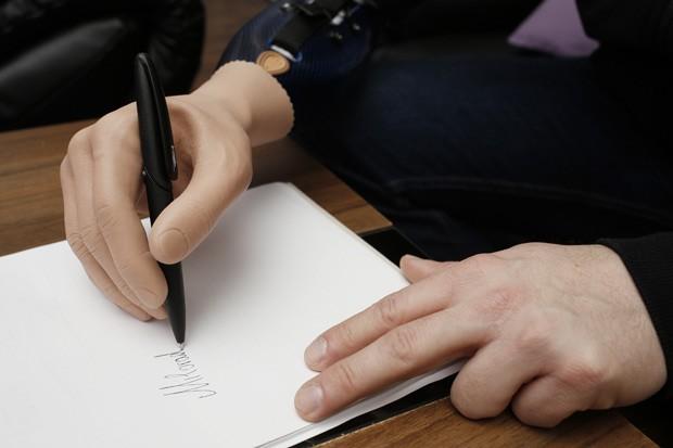 Paciente Milorad Marinkovic usa mão biônica para escrever seu nome  (Foto: Dieter Nagl/AFP)