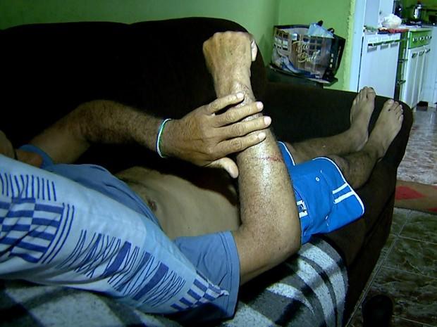 Homem de 55 anos, vítima de atropelamento, mostra ferimentos no corpo (Foto: Reprodução/EPTV)