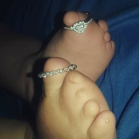 Tylda toes raio x (Foto: Reprodução Facebook Tylda Toes)