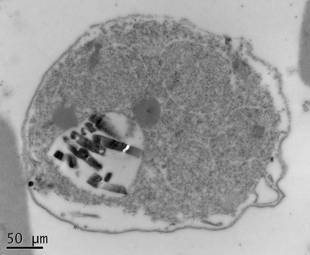 Imagem mostra glóbulo vermelho infectado por Plasmodium falciparum (Foto: J. Curtis/Science/Divulgação)