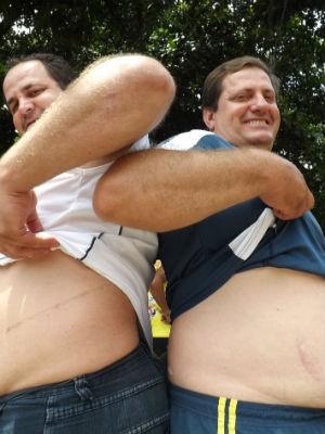 Irmãos mostram as cicatrizes do transplante (Foto: Ana Carolina Levorato/G1)