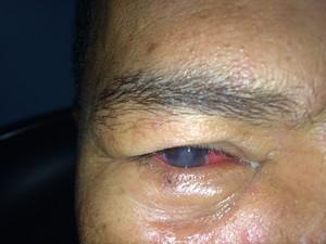 Homem perde a córnea após acidente com anzol (Foto: Julio Lossio / Arquivo Pessoal)