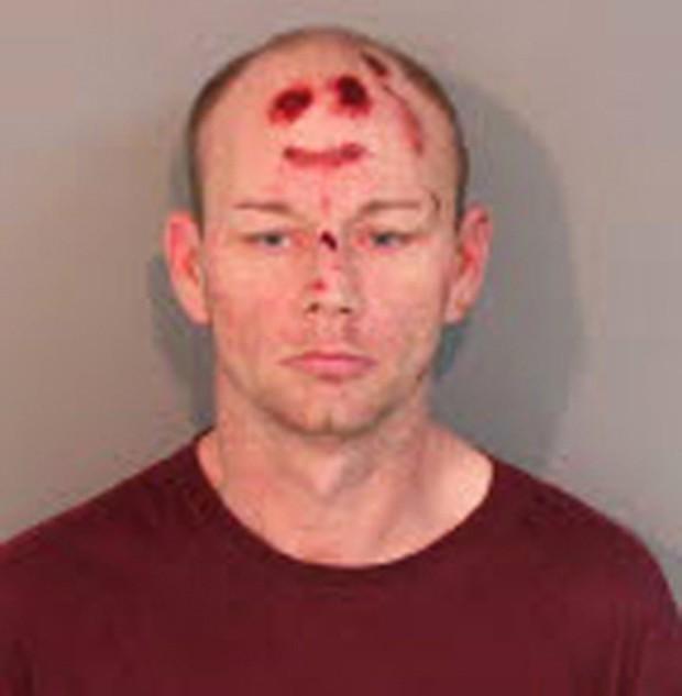 Durante o confronto com os policiais, Jason Archer ficou ferido em formato que lembra 'smile' (Foto: Reprodução)