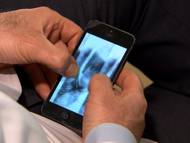 Médicos solucionam casos difíceis com ajuda de aplicativo para celular (Grep) (Foto: Reprodução Globo Repórter)