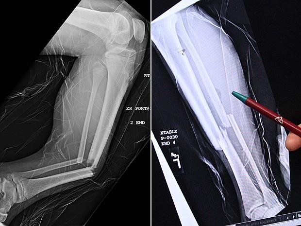 À esq., tíbia e fíbula quebradas após salto em trampolim. à esq., outro raio-X (Foto: Utah Valley Regional Medical Center/Rick Bowmer/AP)