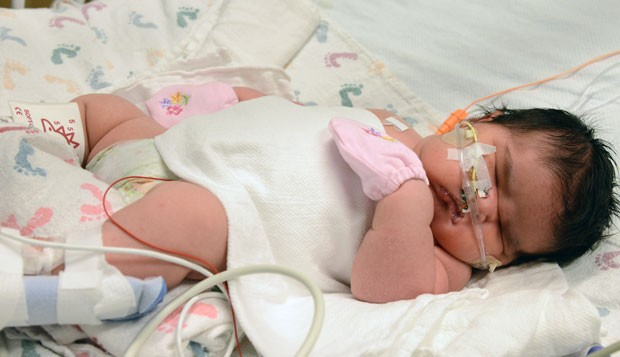 Mia Yasmin Garcia nasceu com 6,26 kg (Foto: Children's Hospital Colorado, Tia Brayman/AP)