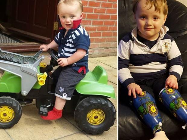 Reuben, antes e depois de pernas prostéticas  (Foto: BBC)