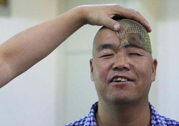 Hospital usou tela de titânio criada com impressora 3D para dar aparência normal a Hu (Foto: China Daily/Reuters)