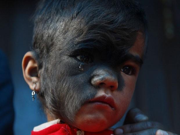Mancha peluda cobria boa parte do rosto de Bhawana (Foto: EFE/ Narendra Shrestha)