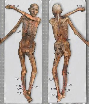 Localização das tatuagens de Ötzi (Foto: Divulgação)