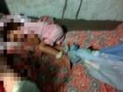 Mãe sofre com distúrbio e acaba mantendo filha amarrada em Sergipe