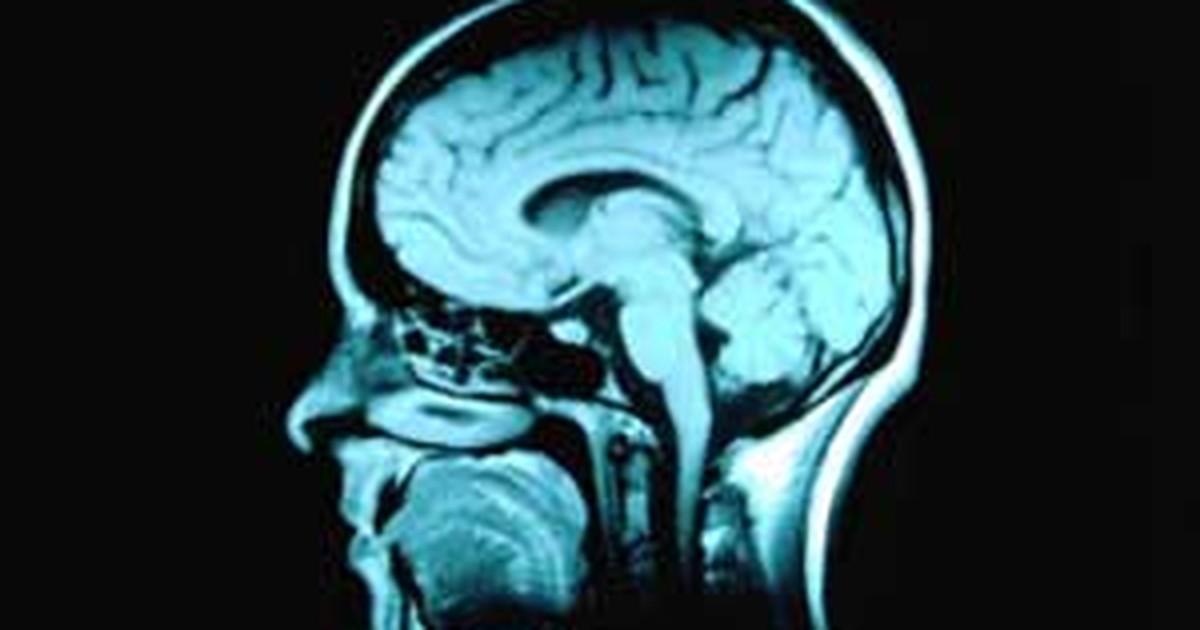 Estudo diz que pornografia pode ser prejudicial ao cérebro