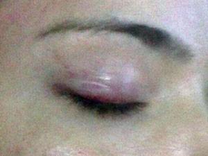 Vítima diz que sofria agressões constantes no rosto e na cabeça pelo ex-namorado, sargento do Exército (Foto: Divulgação/ Arquivo pessoal)