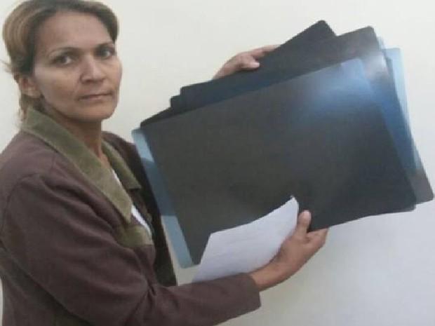 Mãe da adolescente mostra radiografias que fez para encontrar agulhas (Foto: Michele Lester)