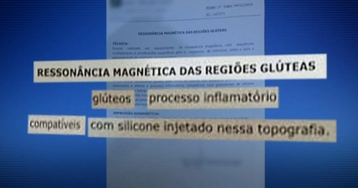 Laudo particular atesta silicone nos glúteos de cliente de falsa ... - Globo.com