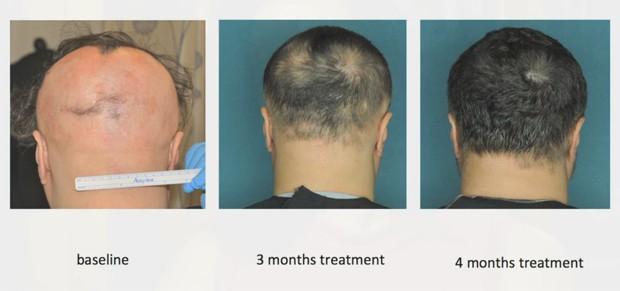 Fotos mostram um dos pacientes com alopecia areata que participou do estudo no início do tratamento, depois de três meses, e depois de quatro meses (Foto:  Julian Mackay-Wiggan/Nature Medicine/Divulgação)