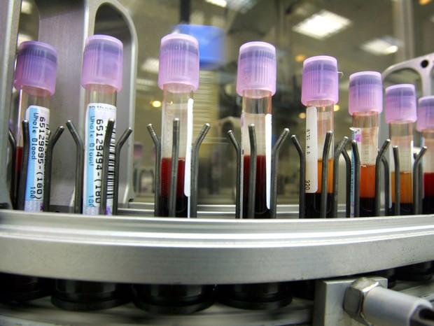 O exame é feita através de coleta de sangue (Foto:  David Silverman/Getty Images)