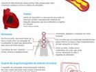 Campanha orienta sobre prevenção a doenças cardiovasculares em MG